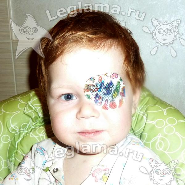 Junior (mini) Детские окклюдеры для лечения косоглазия у детей